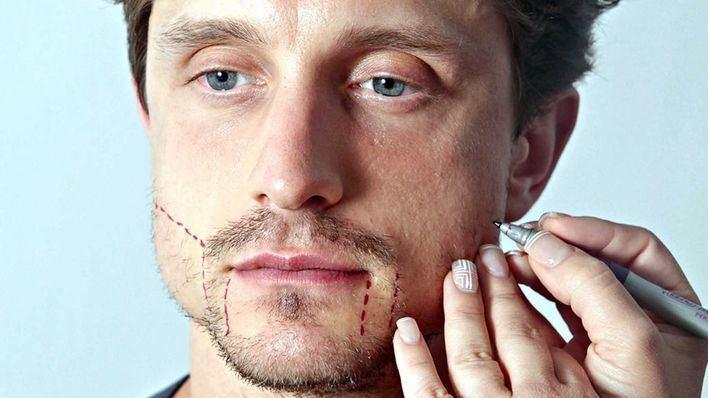 Aumenta la demanda de implantes de barba