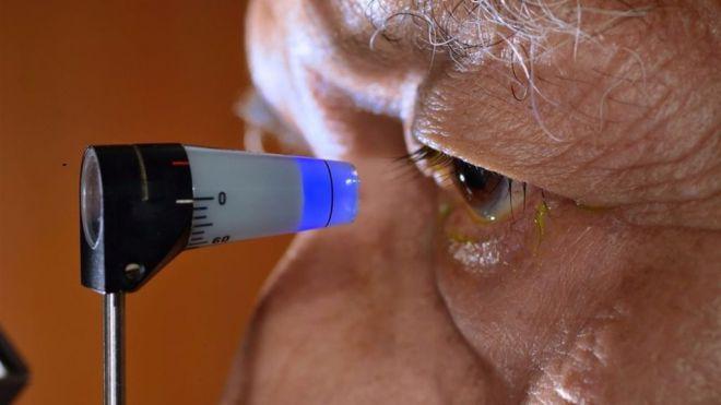 80 millones de personas padecerán glaucoma dentro de 4 años