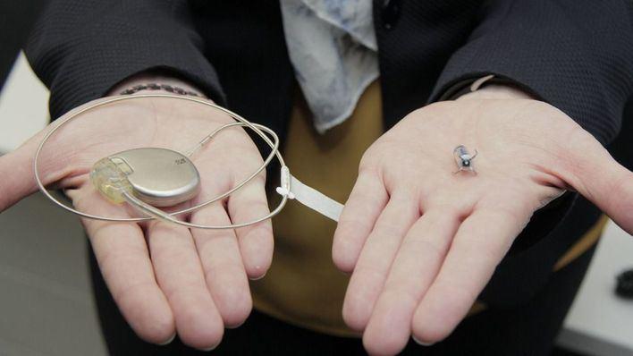Son Espases implanta el primer marcapasos sin cables en Balears