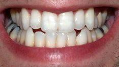 Imagen de los dientes