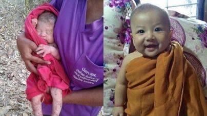 Dos imágenes del bebé 'milagro' cuando fue rescatado y en la actualidad