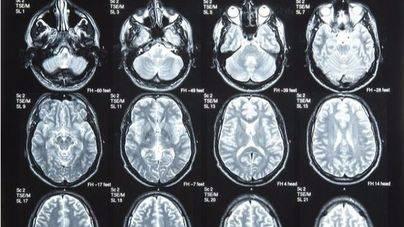 El riesgo de tumor cerebral es mayor entre los que tienen carrera universitaria