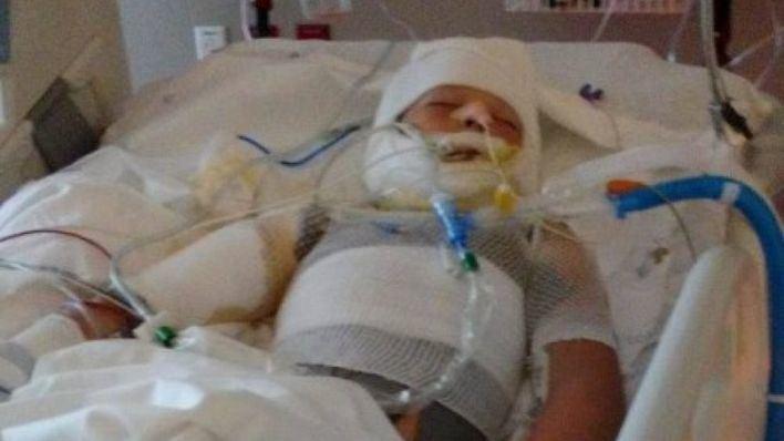 2 menores rocían con gasolina y prenden fuego a otro niño de 10 años
