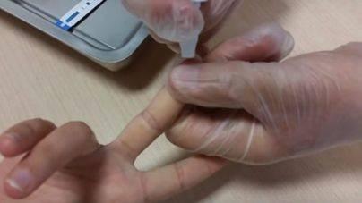 La mitad de infecciones por VIH en Balears se diagnostican cuando la enfermedad está avanzada