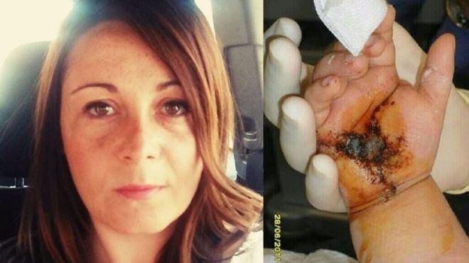 Marilén, la madre de Nerea, mostró la mano herida de su hija a mallorcadiario.com