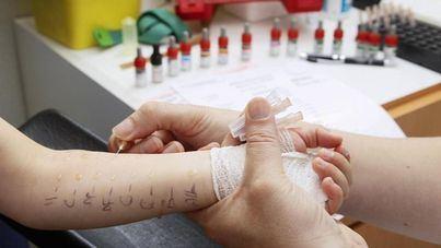 Balears al fin tendrá un alergólogo a repartir entre 1,15 millones de habitantes