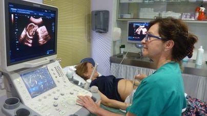 El Hospital Mateu Orfila tendrá un nuevo ecógrafo en dos meses