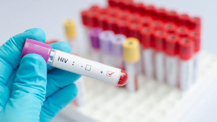 Balears concentra el 4,7 por ciento de los nuevos infectados por Sida