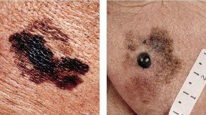 100 nuevos casos de melanoma se diagnostican en Balears cada año