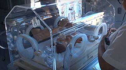Cinco niños de Menorca nacieron en 2017 con una cardiopatía congénita