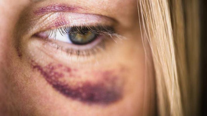 Alertan de que Baleares carece de centros de atención especializados para víctimas de violencia sexual