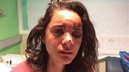 Violan y atacan a una estudiante estadounidense en Aluche