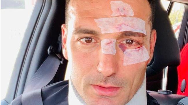 El seleccionador argentino de fútbol, Scaloni, atropellado en Portals