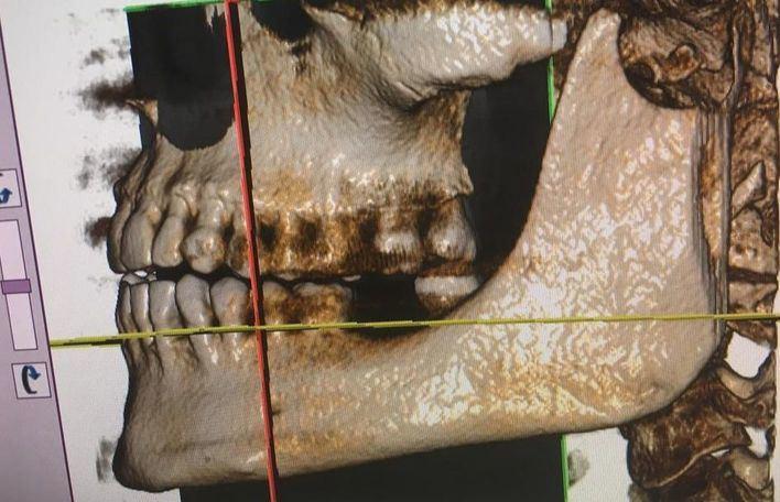 ADEMA incorpora los últimos avances en toma de imágenes 3D