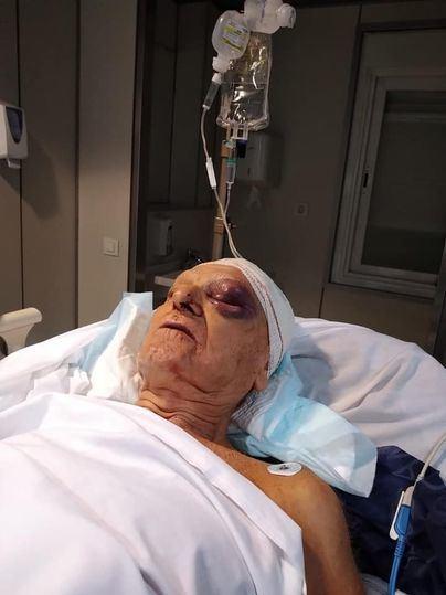 Pide ayuda para localizar a la mujer que atropelló a su abuelo en Campos y se dio a la fuga
