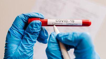 España suma 154 nuevos casos de Covid-19 en las últimas 24 horas