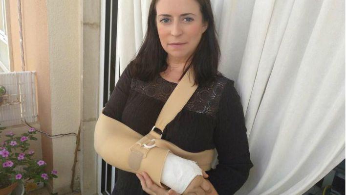 Arrollada por un patinete eléctrico en Palma: 'Necesito ayuda para identificar a los autores'