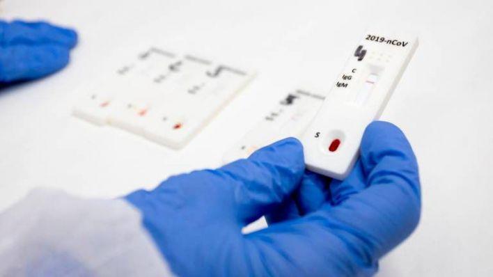 Atención Primaria ya hace test de antígenos con resultados en 15 minutos