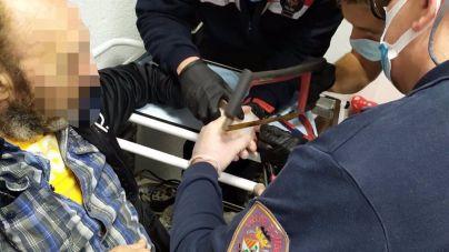 Los bomberos extraen un anillo del dedo hinchado de un hombre en Can Pastilla