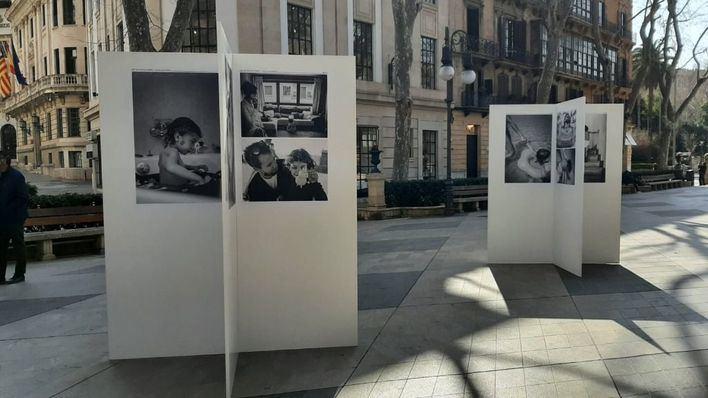 Palma acoge una exposición fotográfica para ayudar a visibilizar las enfermedades raras