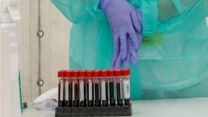 75 nuevos contagios en Baleares