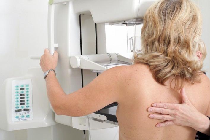 A la mitad de mujeres en situación de pobreza no se le ha realizado nunca una mamografía