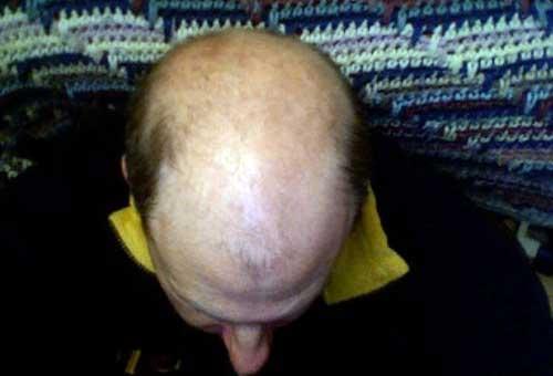 """Denuncian el """"engaño"""" de los tratamientos contra la alopecia"""