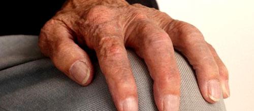 Artrosis, una pandemia invalidante