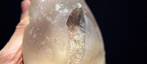 Aconsejan que se extraigan los implantes mamarios PIP