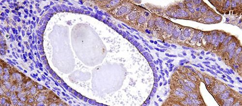Una técnica aplicada al sistema inmunológico podría combatir el cáncer