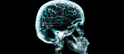 La Fundaci�n del Cerebro cumple 7 a�os apoyando a los enfermos neurol�gicos