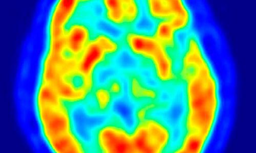 El cerebro humano favorece la creatividad en la toma de decisiones