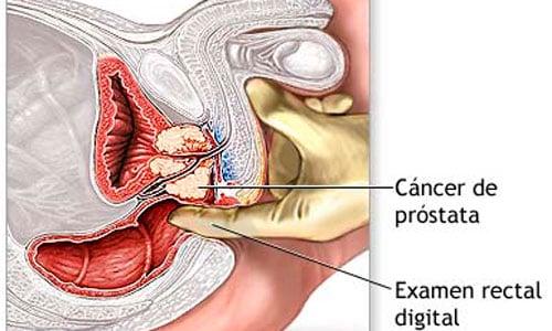 La circuncisión podría proteger frente al cáncer de próstata