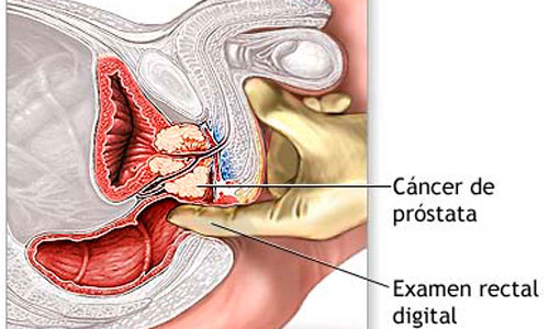 ver videos de cancer de prostata