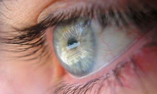 El glaucoma no puede prevenirse, pero sí tratarse