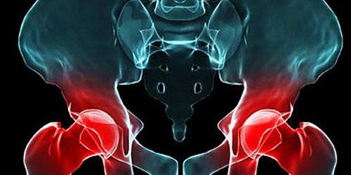 Las prótesis metálicas de cadera exponen a los pacientes a fugas tóxicas