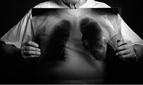 España, 8º país de la UE en casos de tuberculosis