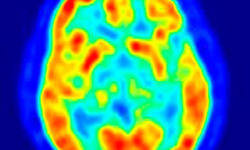 Identifican el regulador metabólico de la epilepsia