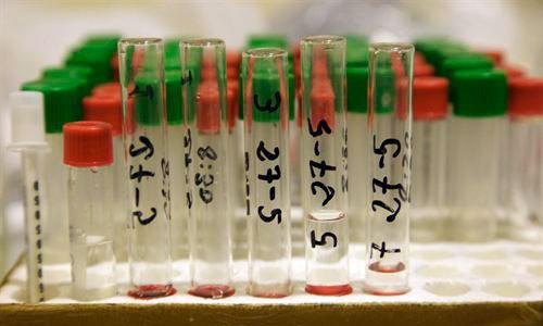 Un análisis de sangre podría adelantar el diagnóstico del cáncer de mama