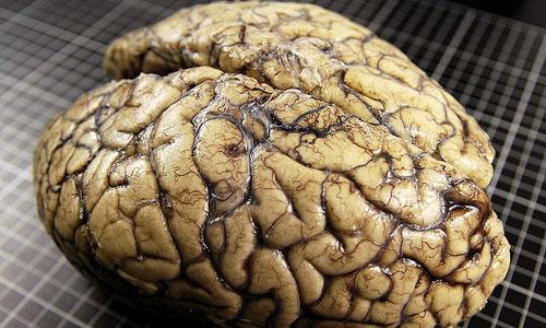 El banco de cerebros busca donantes