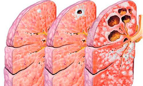 La tuberculosis más resistente se expande por todo el mundo