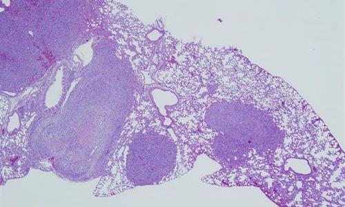 Identifican un componente celular que impide la metástasis