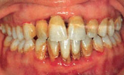 Los diabéticos mal controlados tienen el triple de riesgo de sufrir periodontitis