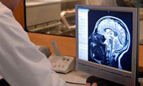 Una resonancia magnética facilita el diagnóstico del alzheimer