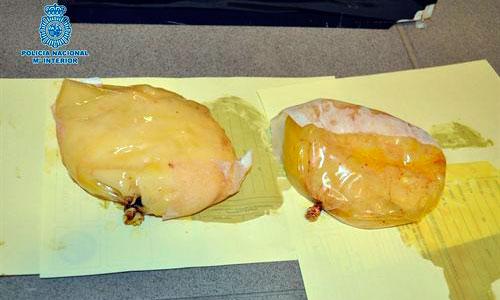 Ocultaba la cocaína en las prótesis mamarias