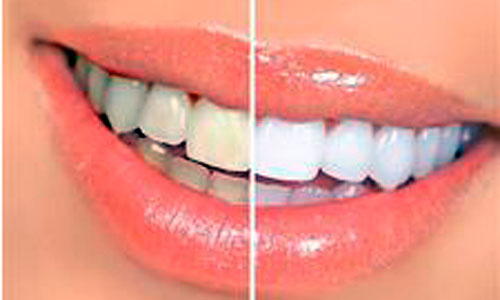 El blanqueamiento dental es seguro y eficaz