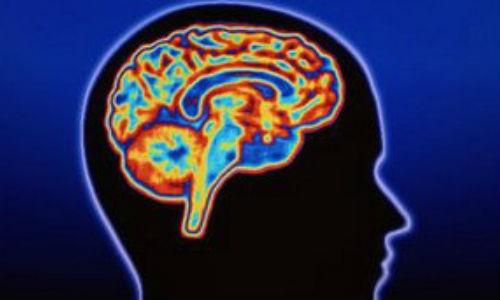 Un escáner identifica el tipo de demencia