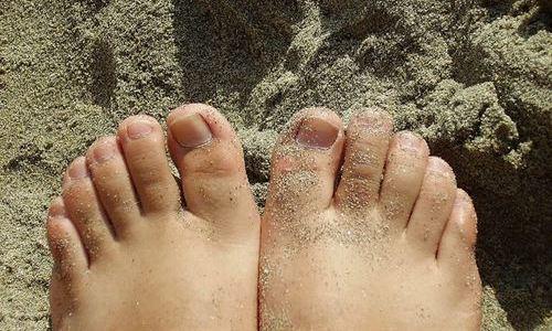 El olor de los pies no es crónico y tiene su punto álgido en la adolescencia