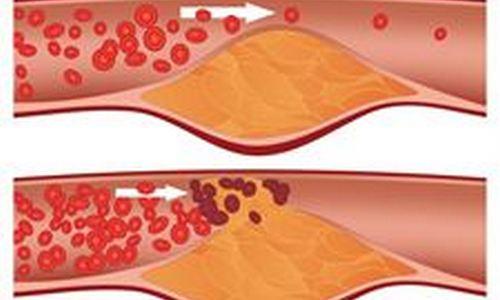 El 13% de los trabajadores tienen niveles altos de colesterol