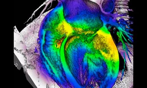 Un gel inyectable estimula la regeneración del corazón tras un infarto